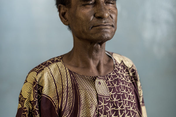 """Victims Of Hissene Habré crimes.  Husseini Robert Gambier, they put wood on his head, by way of clamps that squeezed during interrogation. insecticide eyes kicks. They call him """"the one who runs faster than death."""" It is half blind and half deaf by torture."""